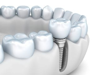 Implant Dentistry in Downtown Chicago