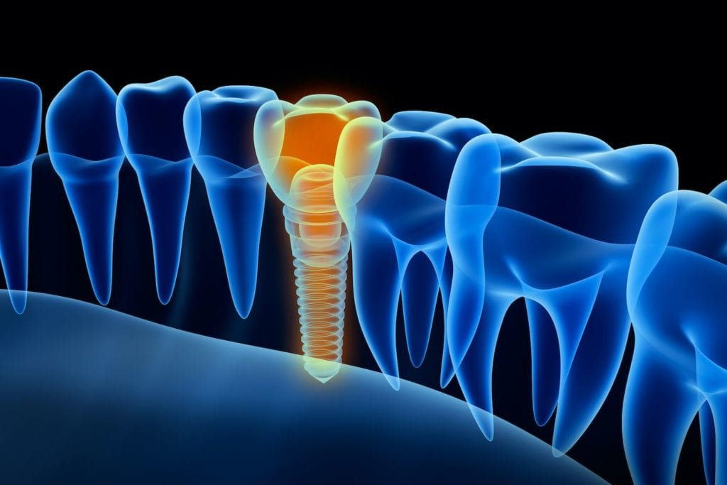 types of dental implants in Chicago Illinois